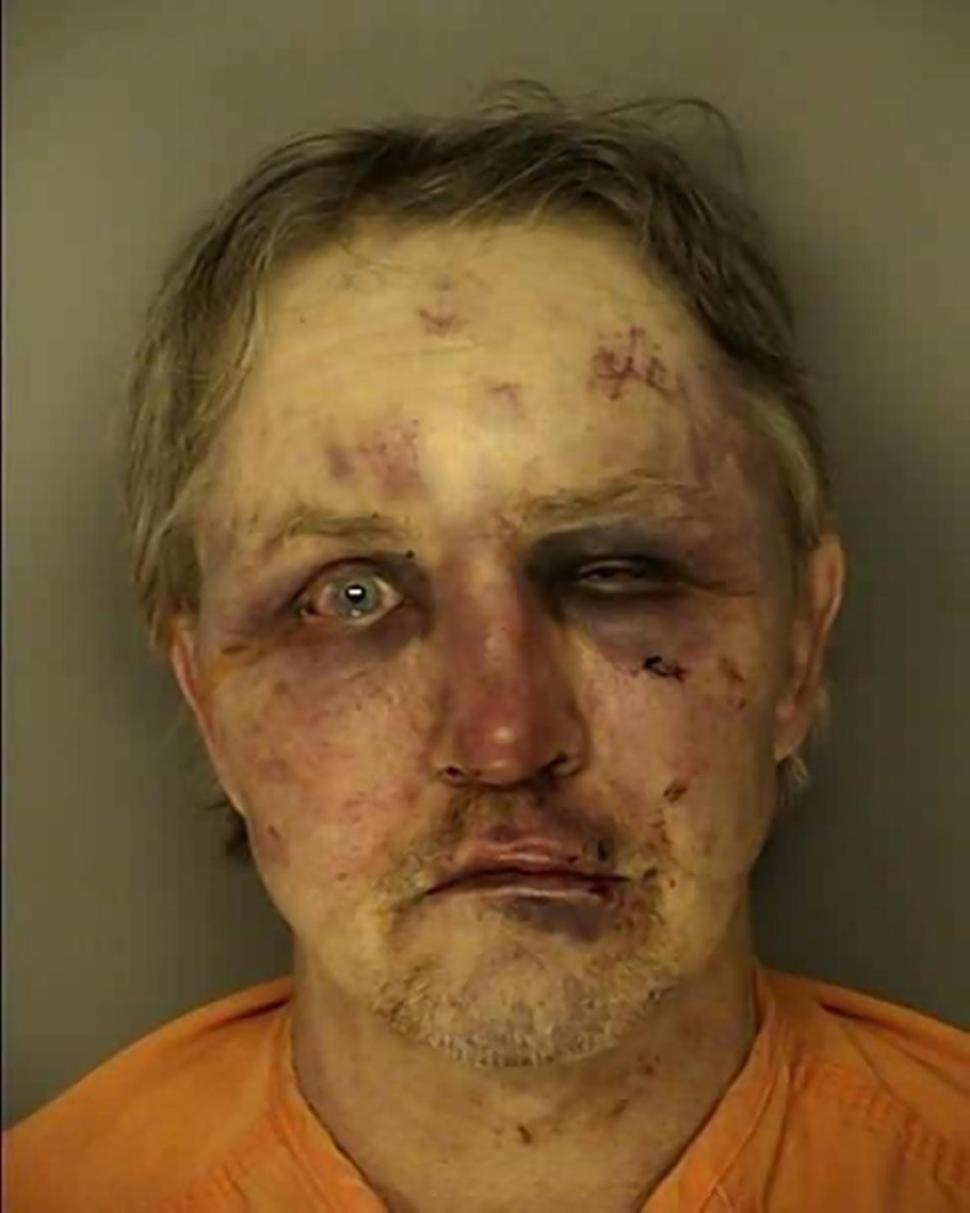 William Mattson after the attack. (Conway Police Department)