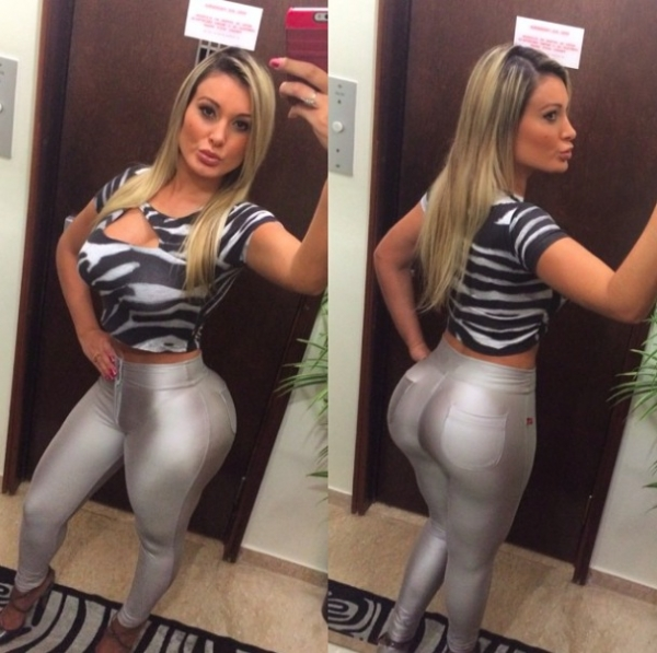 Andressa Urah, runner-up of Miss BumBum beauty contest recovers after nearly dying due to septic shock