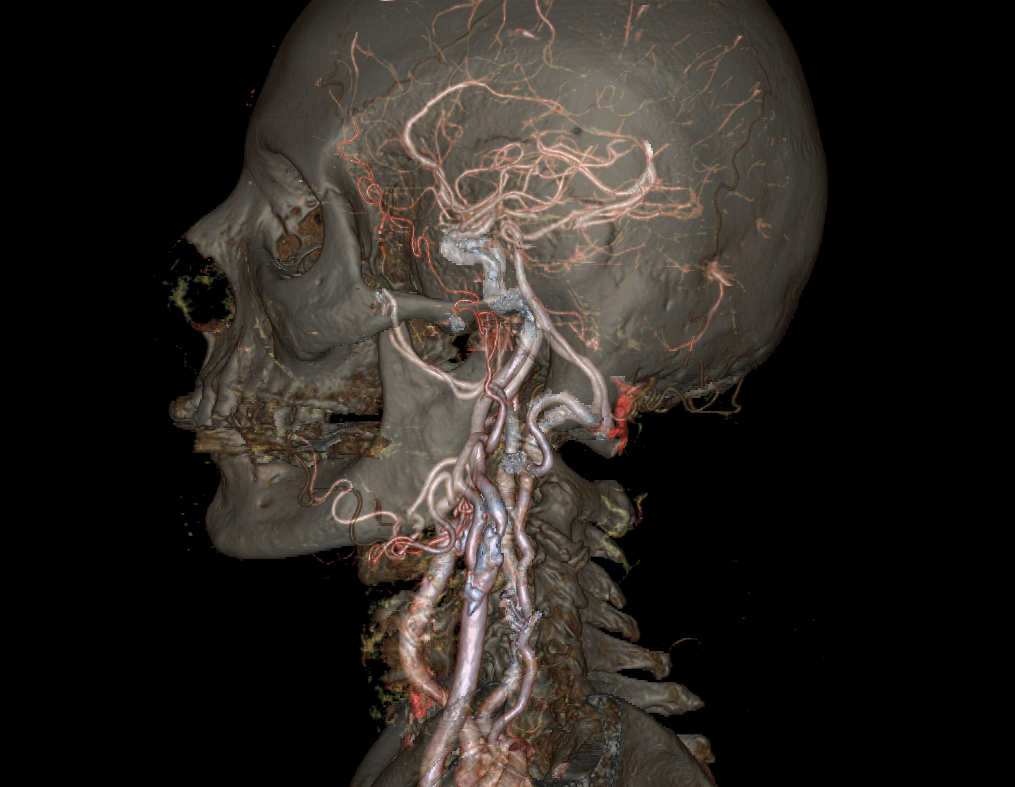 A new CT scanner called Revolution CT can show animated moving 4D models of any part of the human body in a fraction of a second