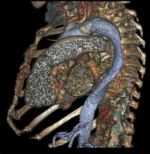 A side view of the chest cavity, including the heart
