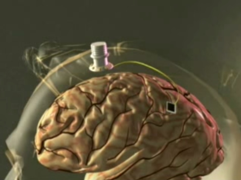 braingate wireless computer brain interface