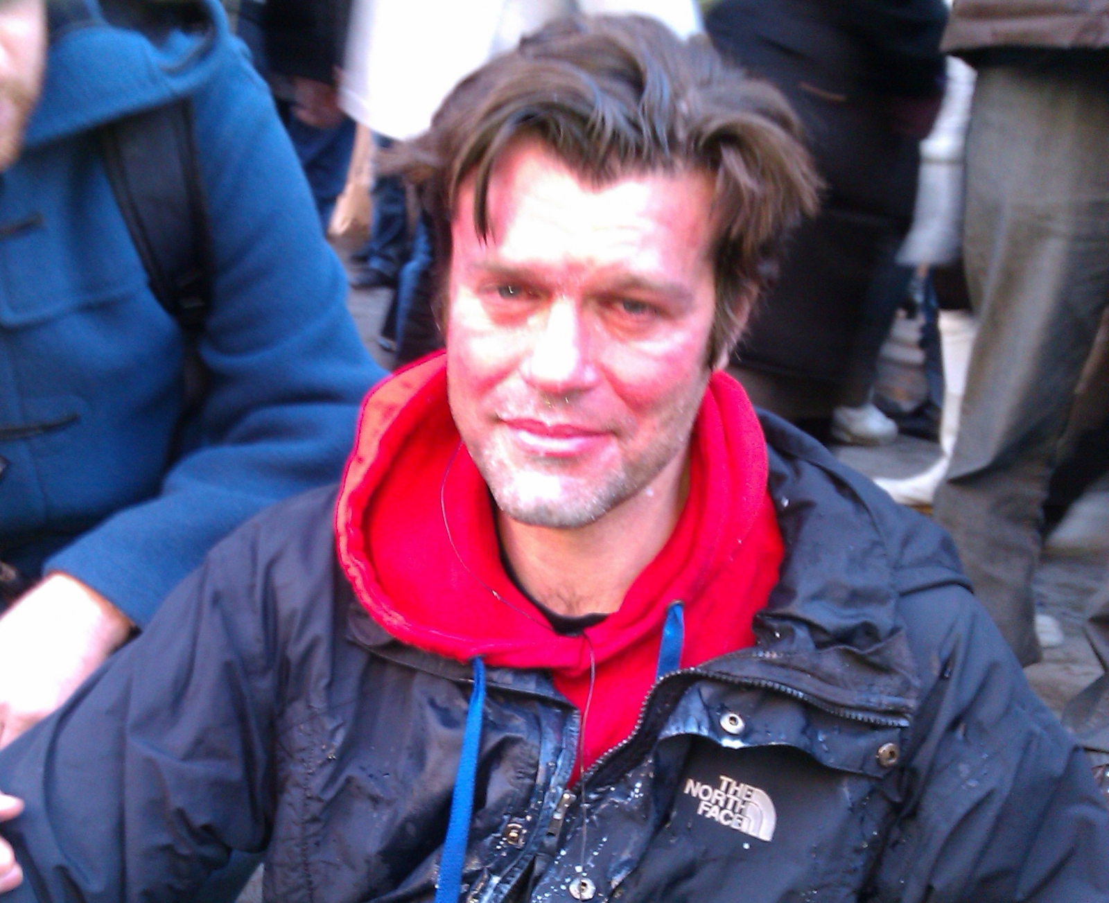 Uk Uncut activist Mike Firth after police hit him with CS spray during protest