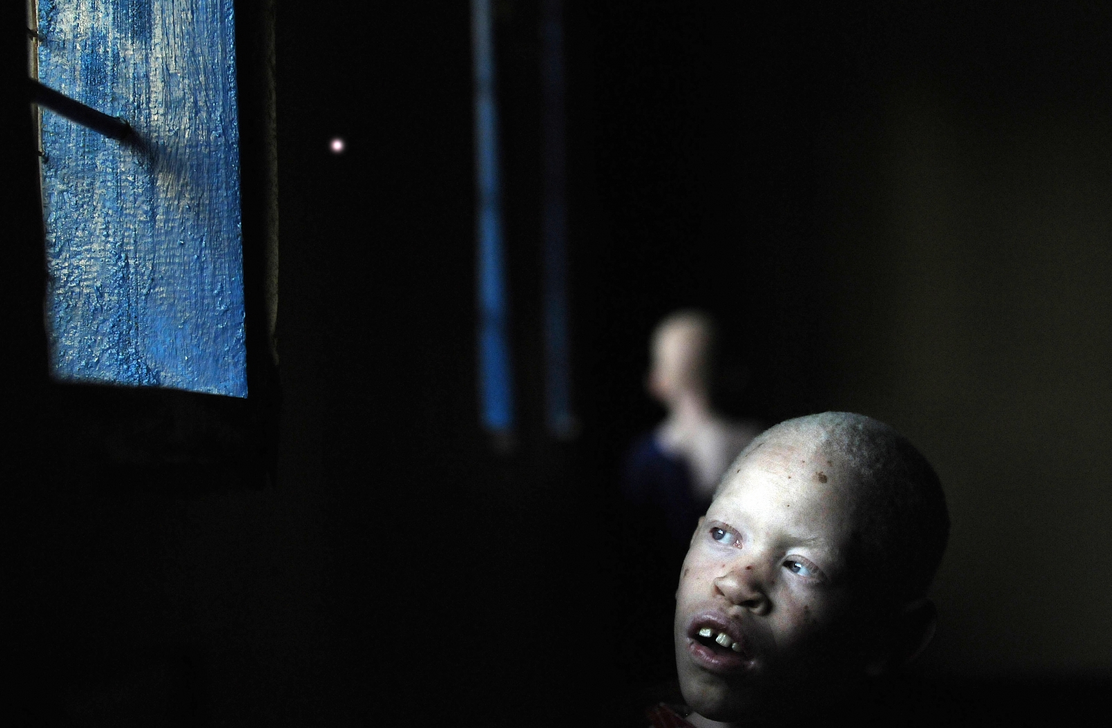 An Tanzanian albino child in school. At least 43 albino children have been murdered since the start of the century. (Getty)