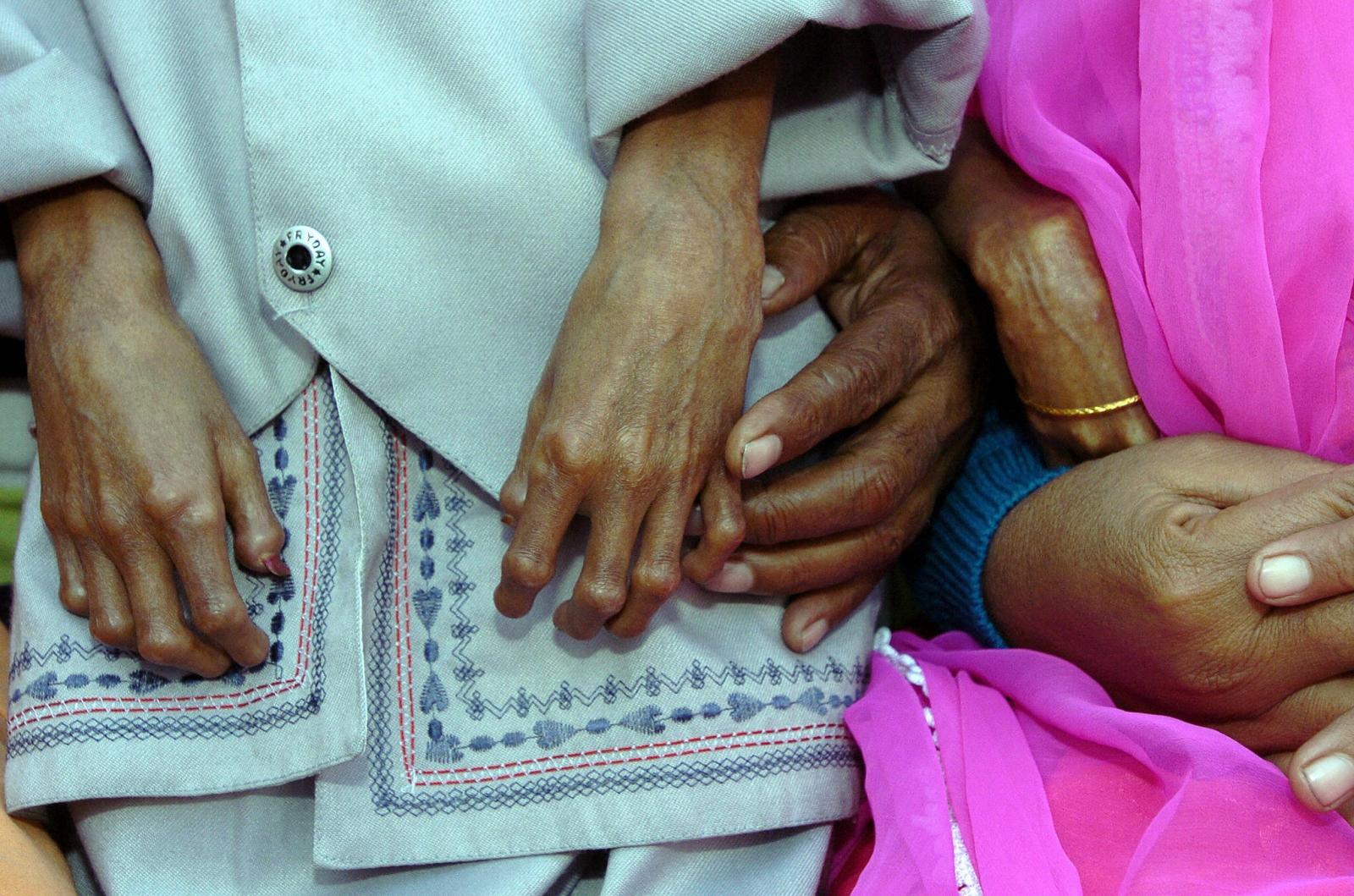Progeria disease