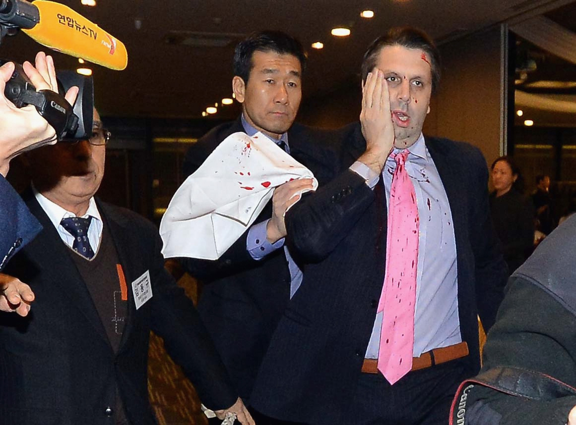 US ambassador South Korea Mark Lippert attacked