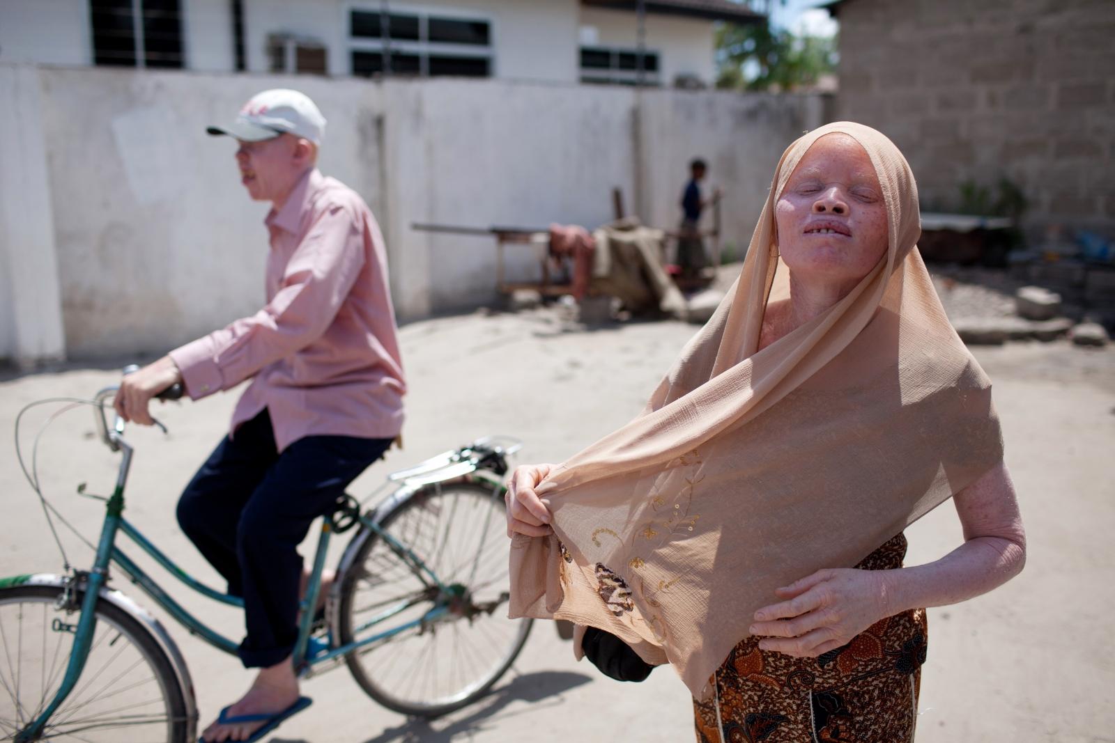 Albinos Tanzania