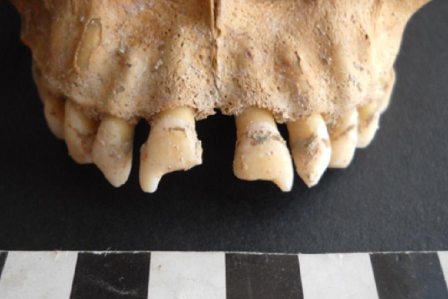 African slave skeleton
