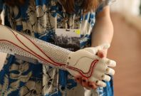 Grace Mandeville Bionic Arm close-up