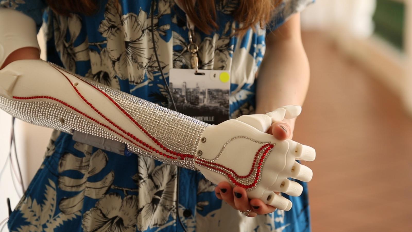 Grace Mandeville Bionic Arm close-up