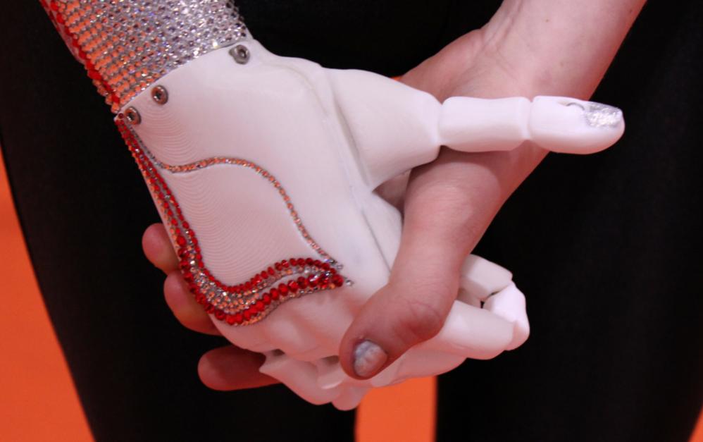 bionics 3d printing open bionics