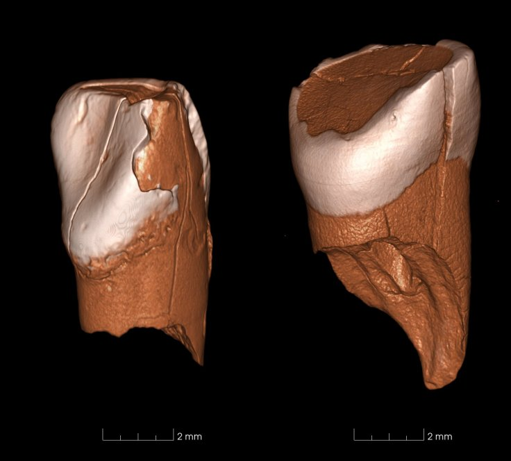 Protoaurignacian teeth mystery species