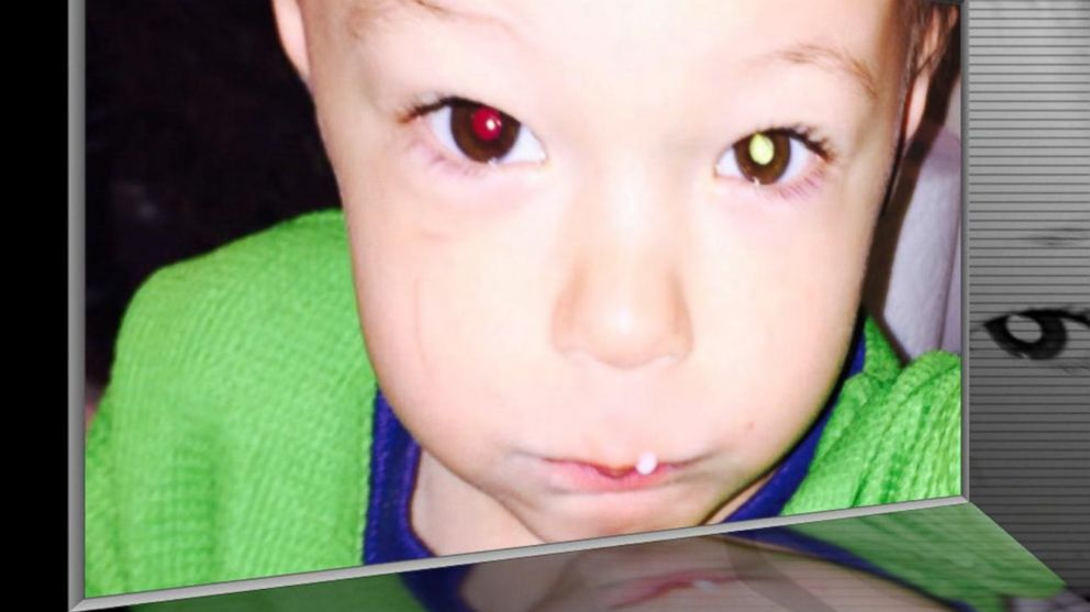 toddler's eye cancer