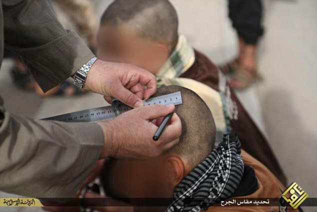 Isis measures for wound