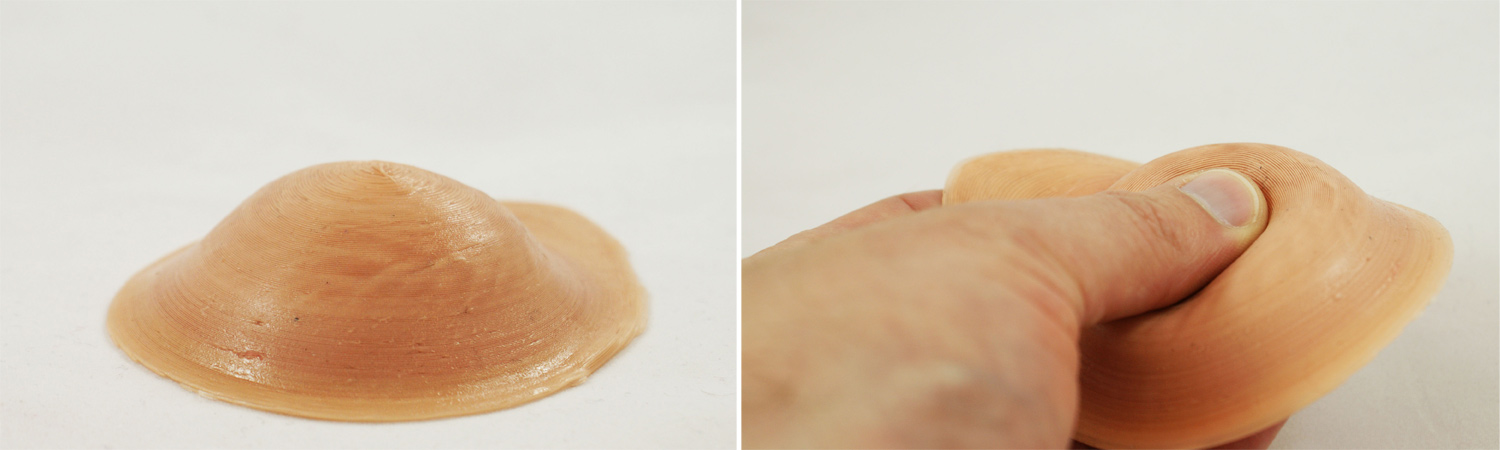 3D printed silicone breast implants