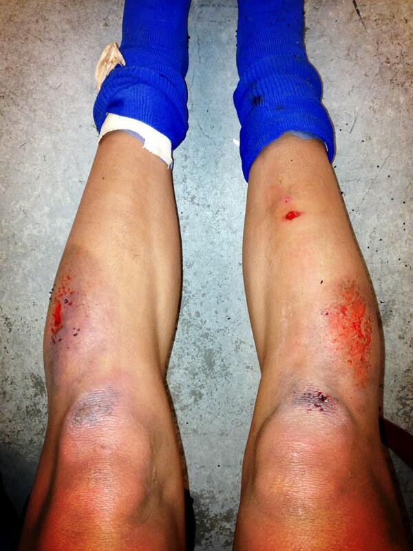 Artificial turf war wounds