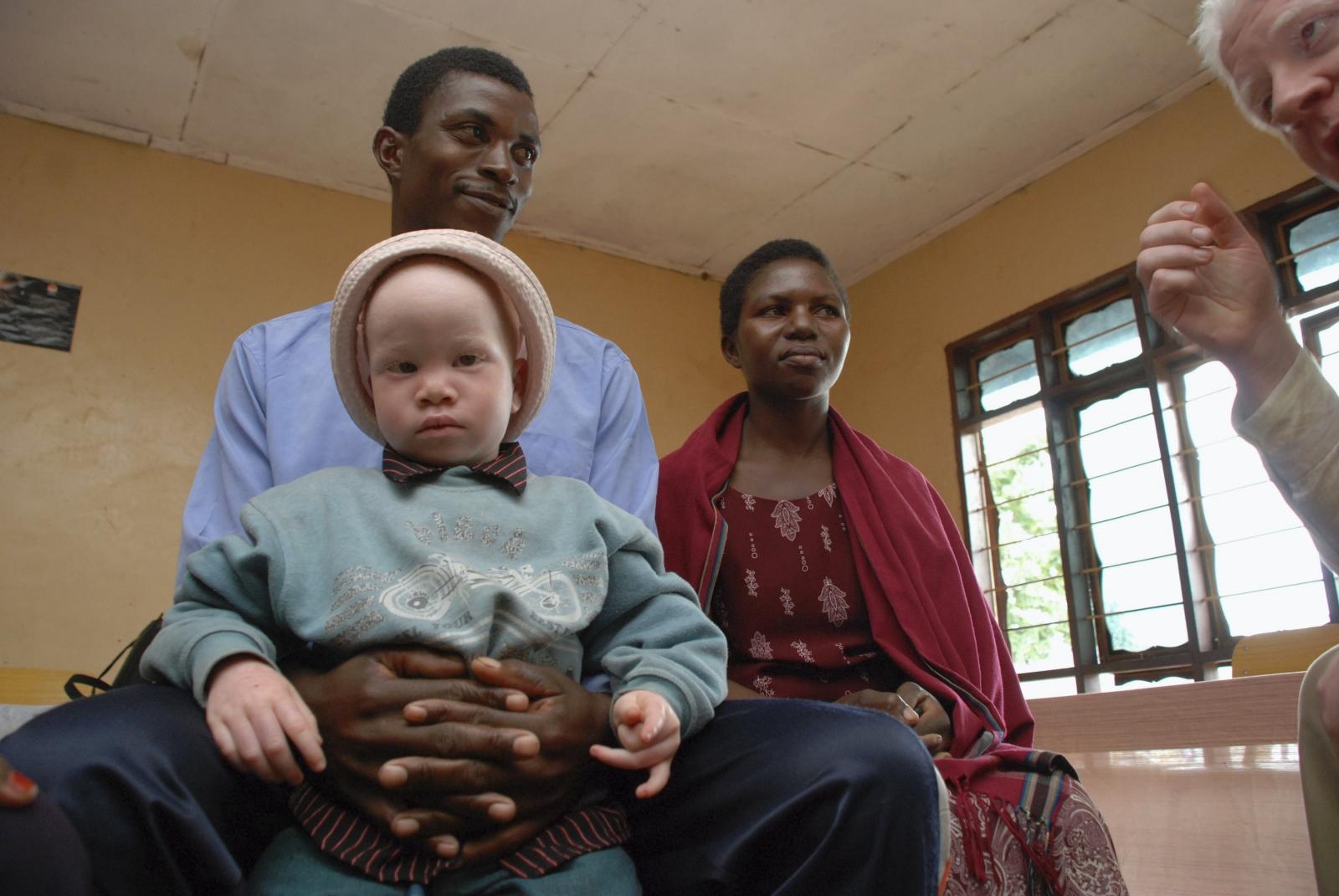 Albinism Tanzania
