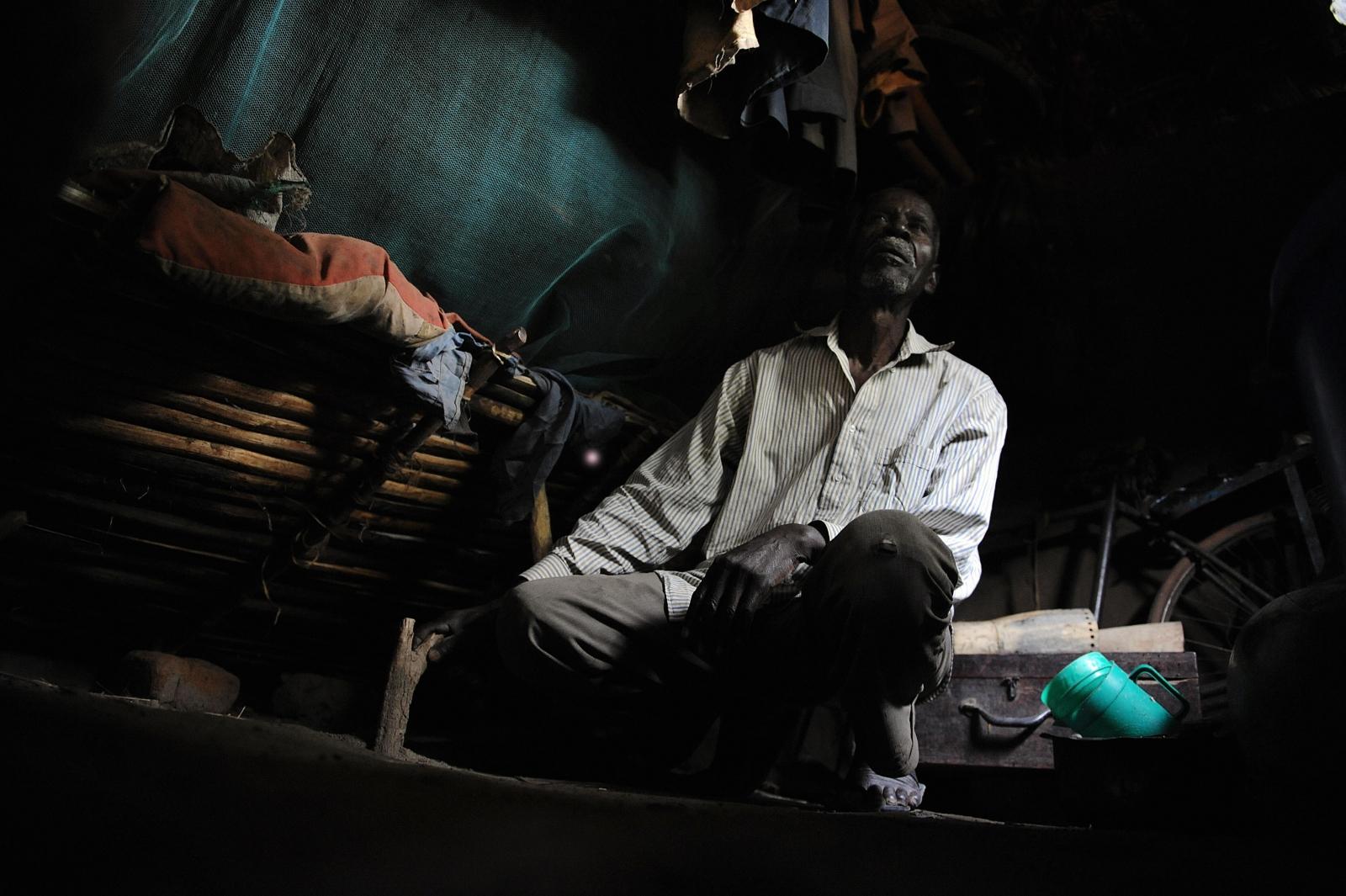 Tanzania albinism