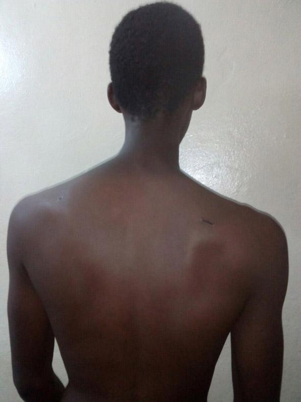 Burundi protester torture