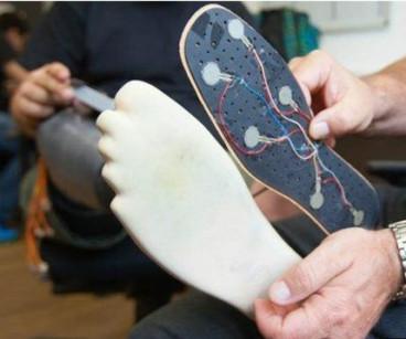 prosthetic limb bionics artificial sensors