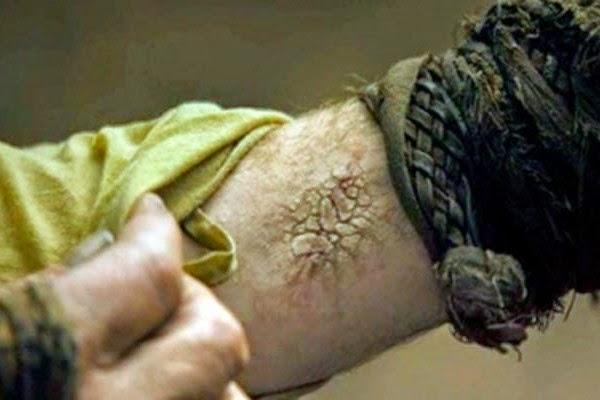 Ser Jorah Mormont greyscale