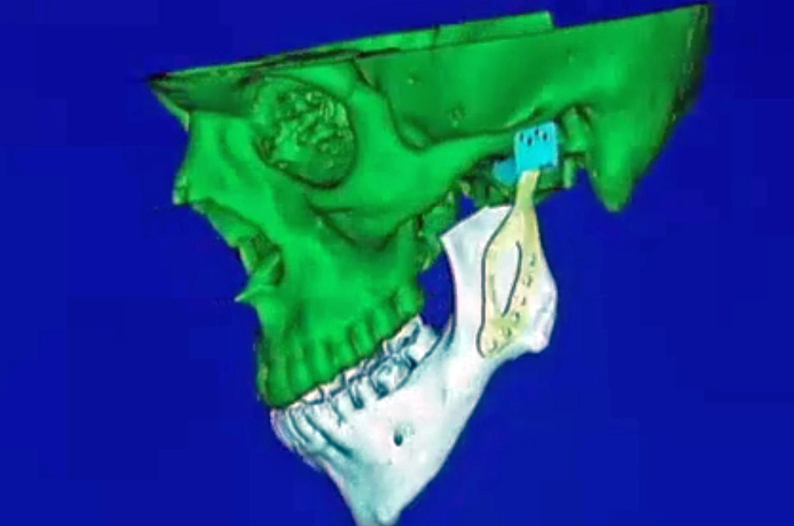 3D printed titanium prosthetic jaw joint bone
