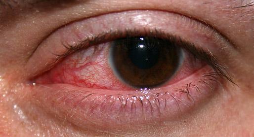 red eyes swimming
