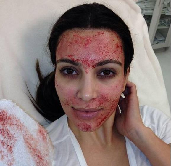 Kim Kardashian bloody facial selfie