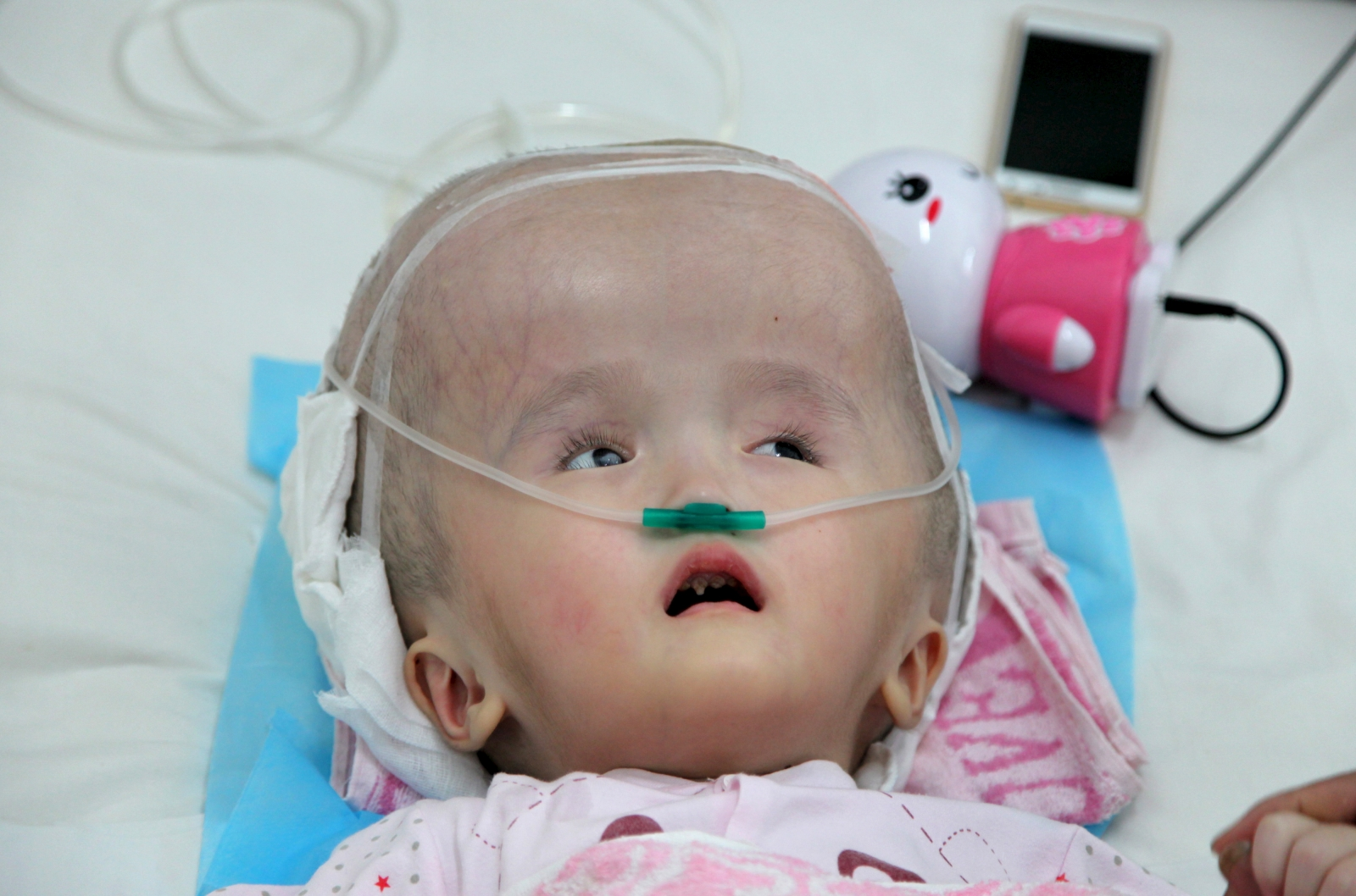 Toddler has skull reconstructive surgery