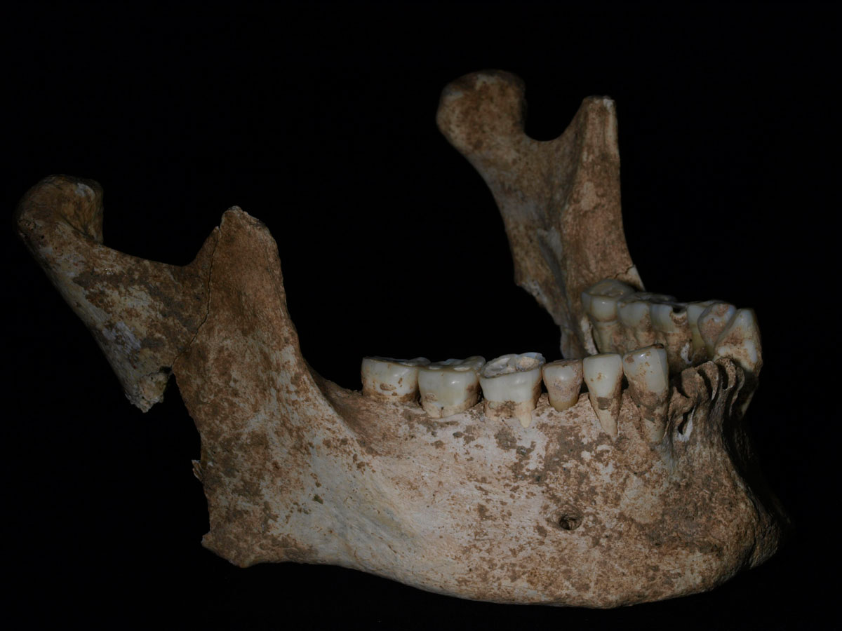 Mandible of King Philip II