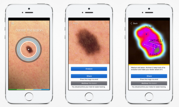 skinvision medtech smartphone doctor