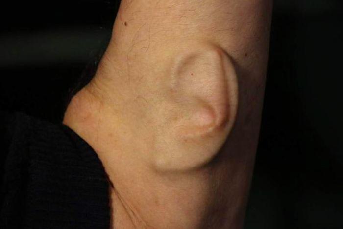 Ear Arm