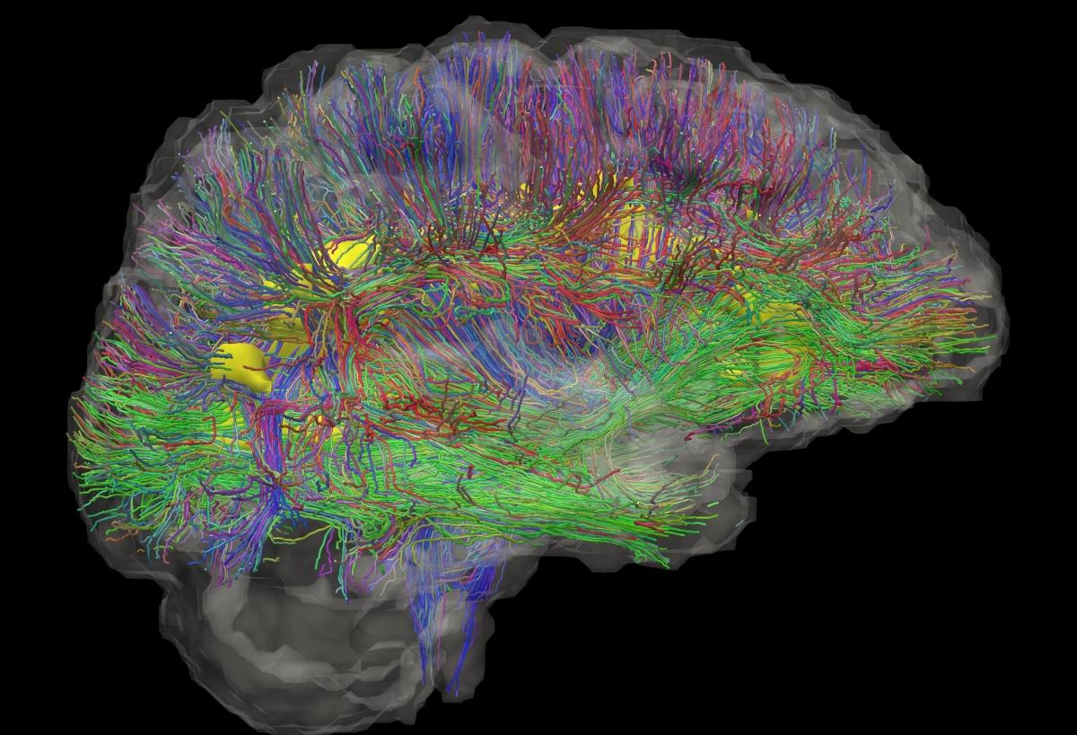 brain wiring
