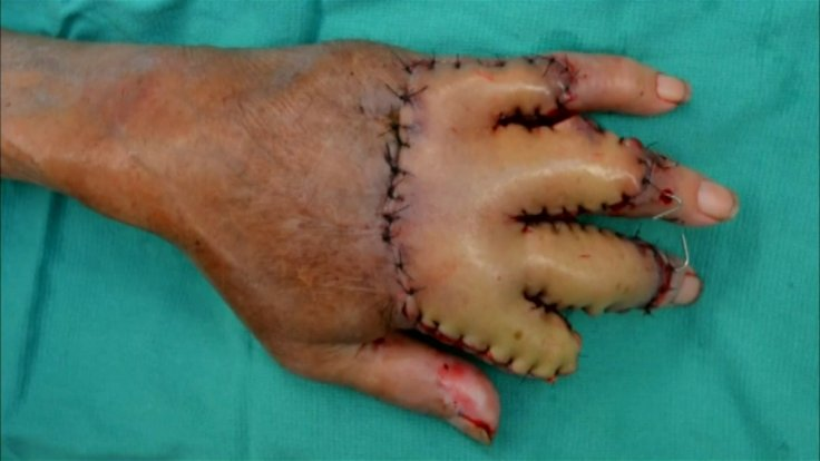 sewn hand into belly