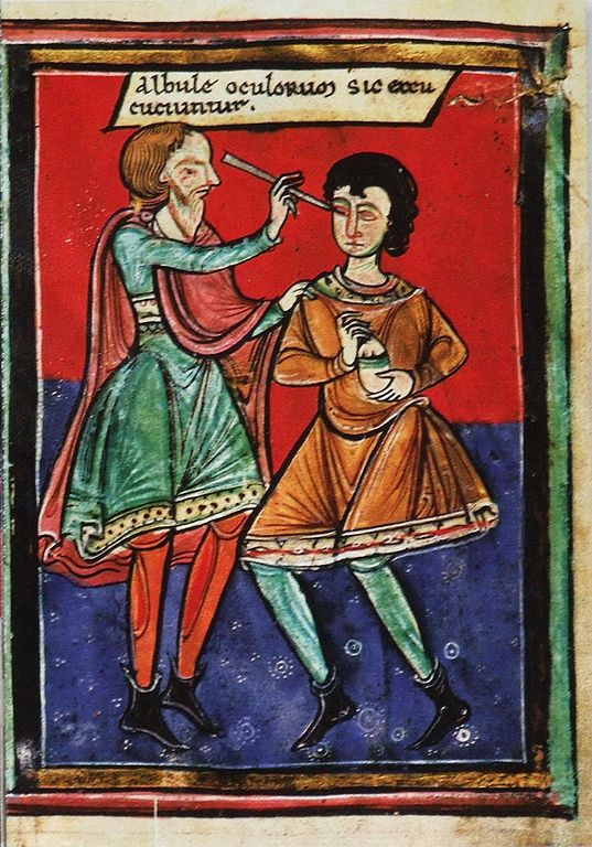 Terrifying Medieval Medical Procedures That Will Make Your Toes Curl