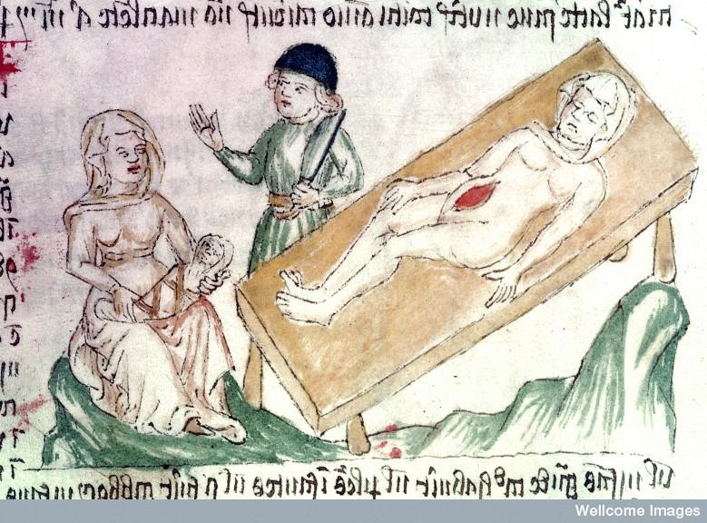 medieval caesarean
