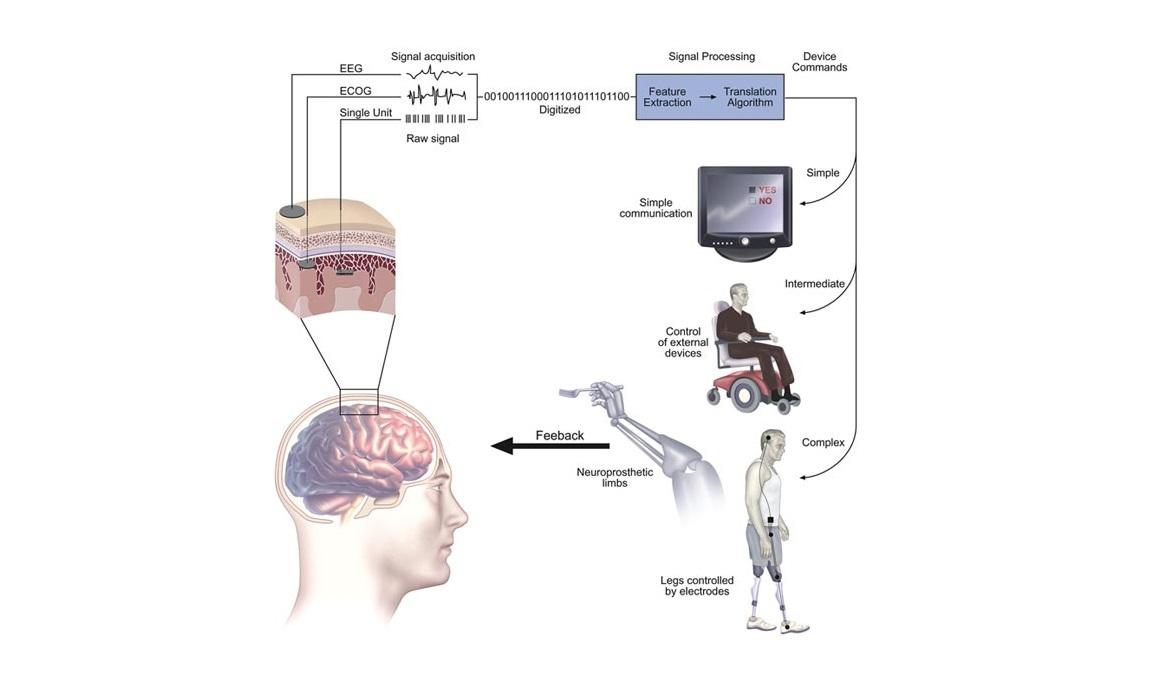 neuroprosthetics prosthetics neural brain control