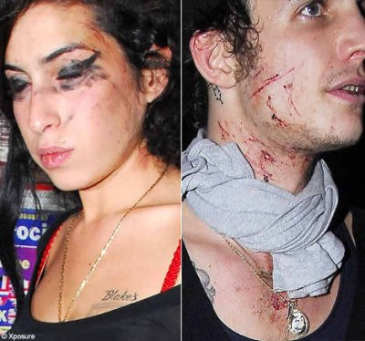 Amy Winehouse and Blake Fielder Civil after a fight related to drugs