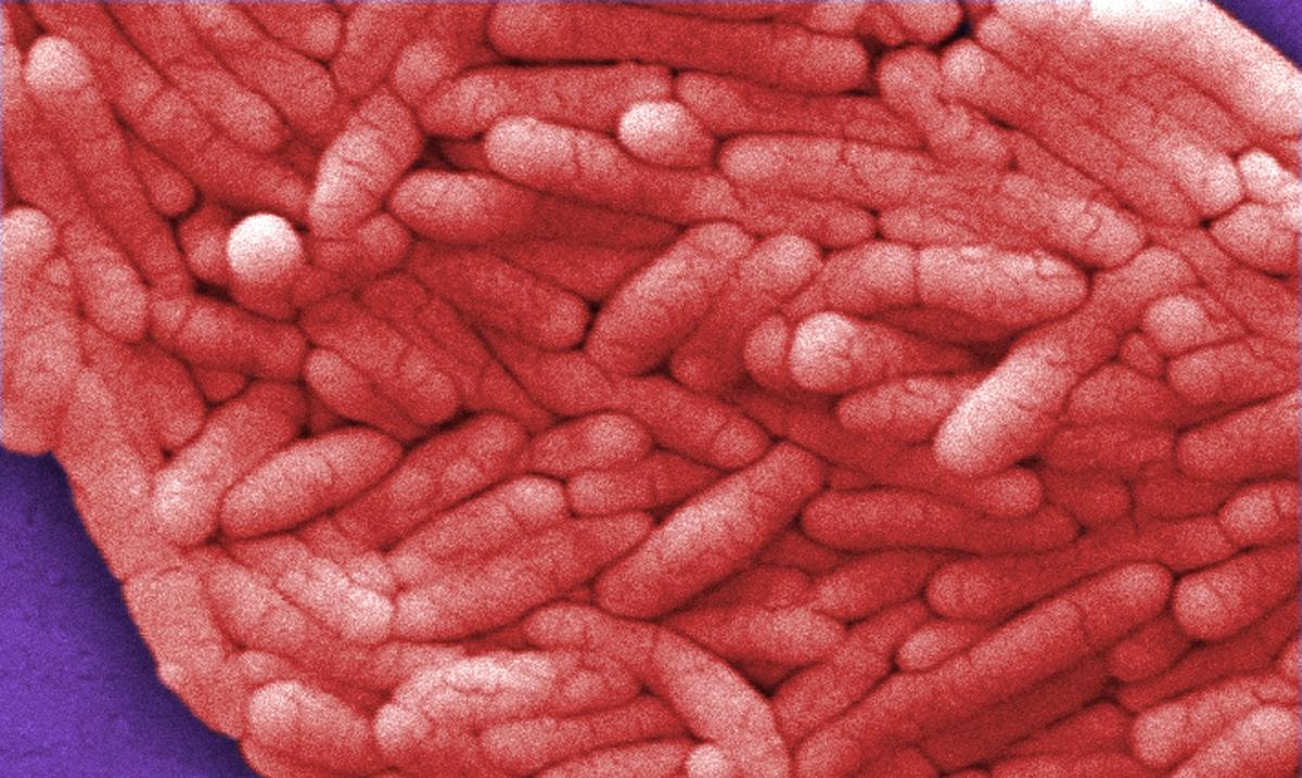 Gram-negative Salmonella bacteria