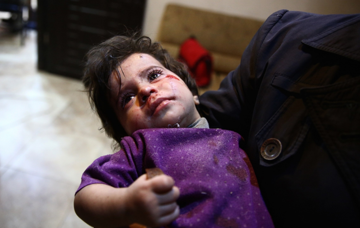 A wounded Syrian child