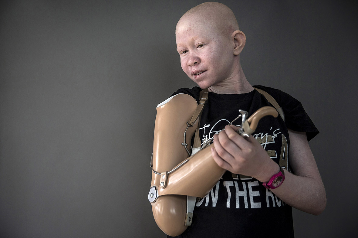 Tanzania's 'ghosts people': Putting an end to albino persecution