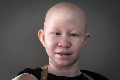 albinos Tanzania witchcraft