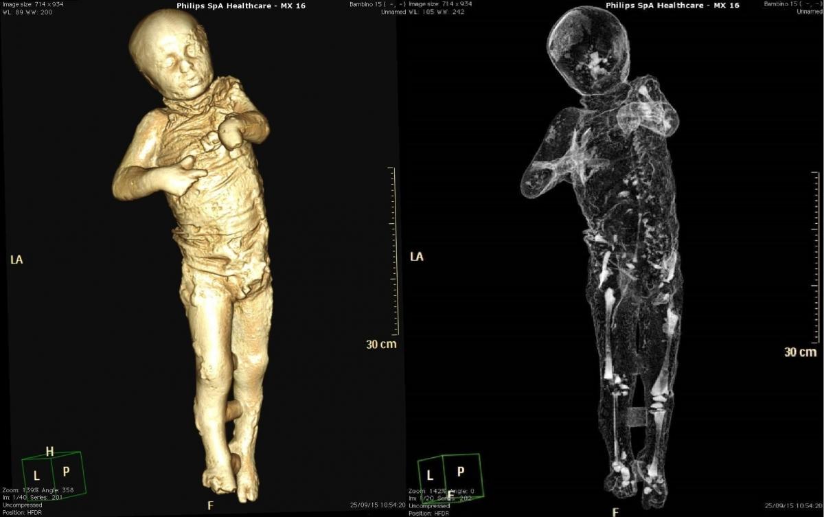 pompeii body casts