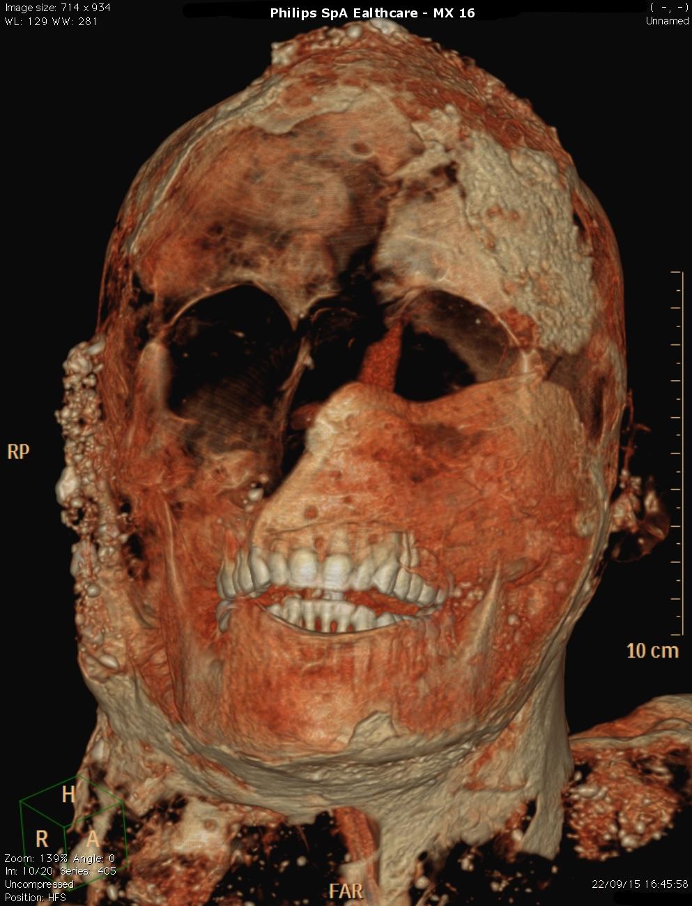 Pompeii Bodies Couple