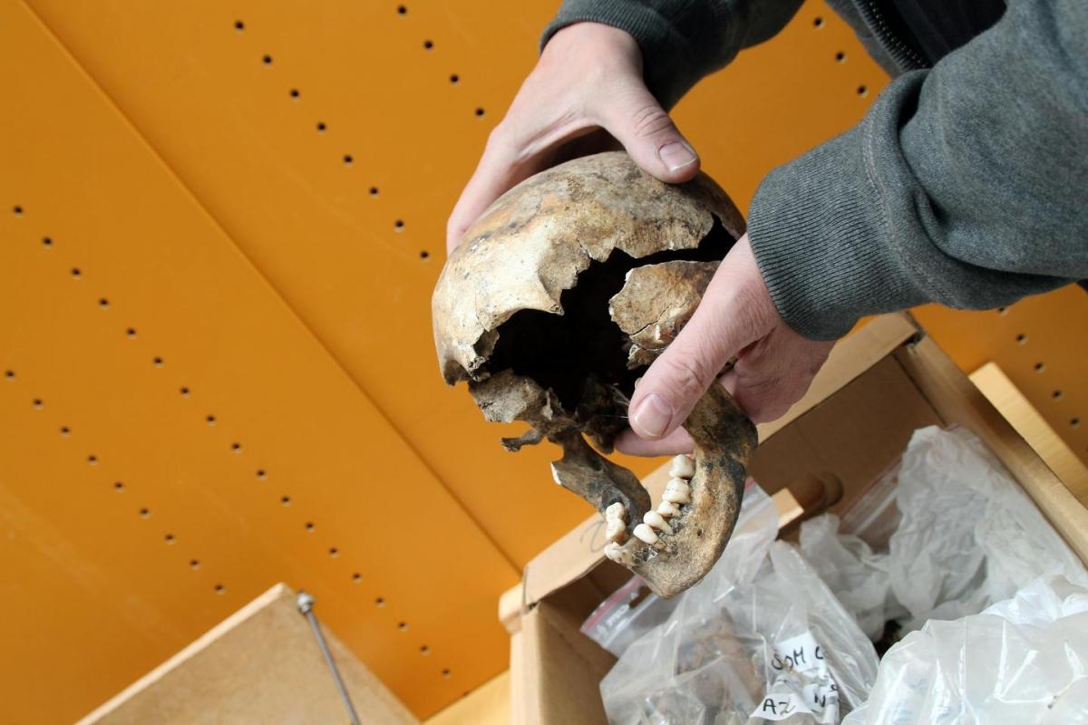 skull lead poisoning