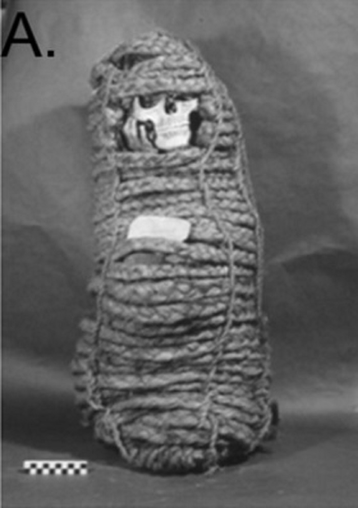 incan mummy antibiotic resistance