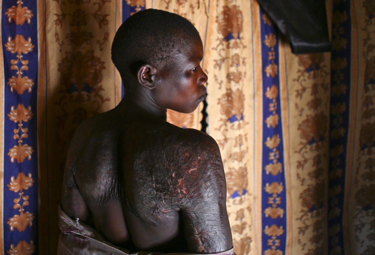 Victim of DRC armed groups and rebels