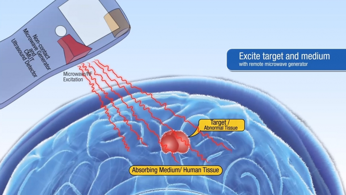 Stanford University inventing tricorder to detect tumours