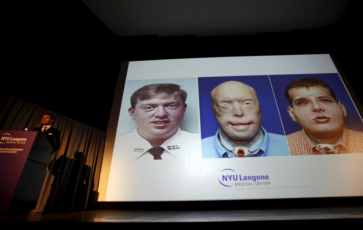 Face transplant success