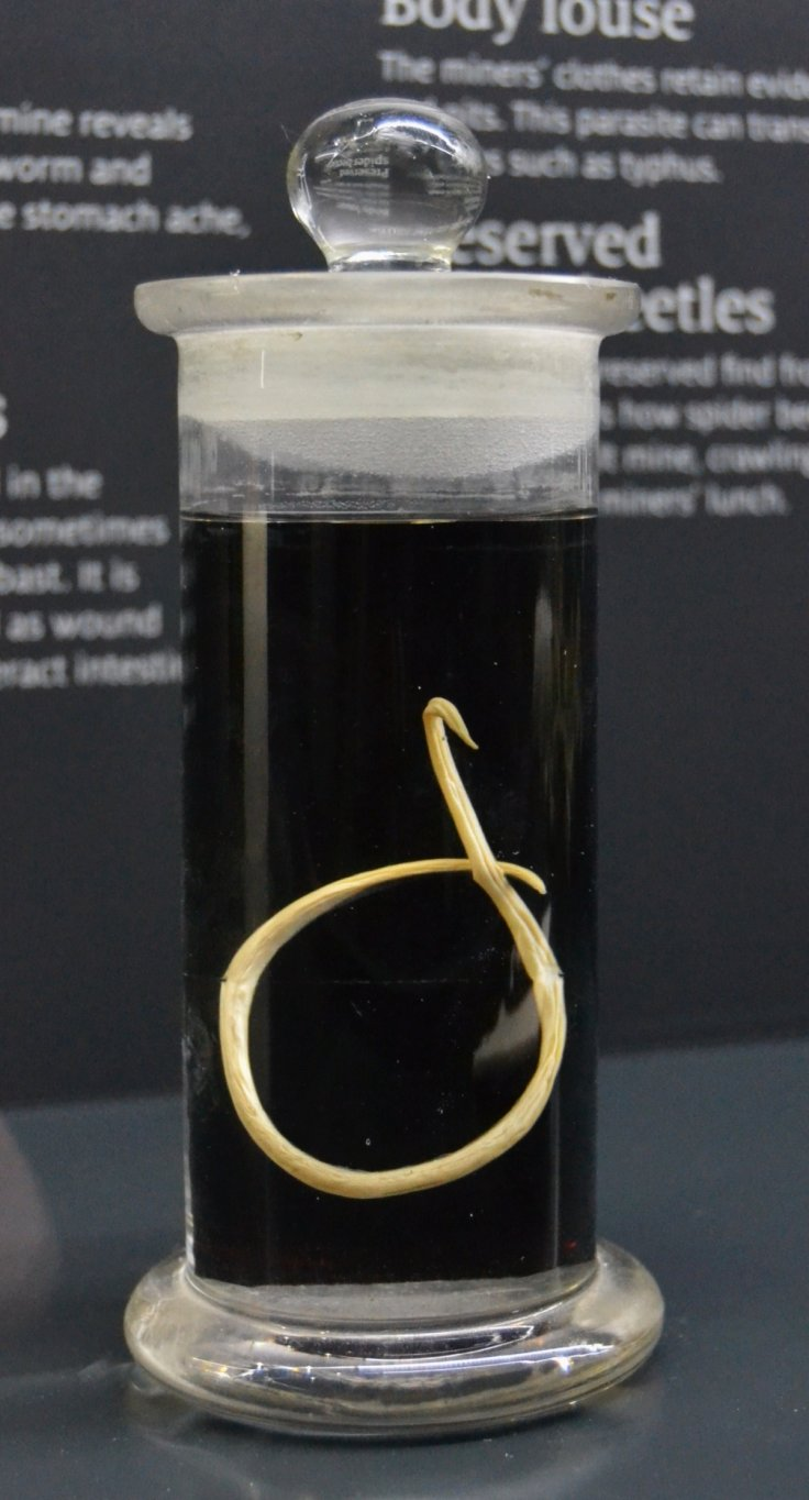 giant roundworm
