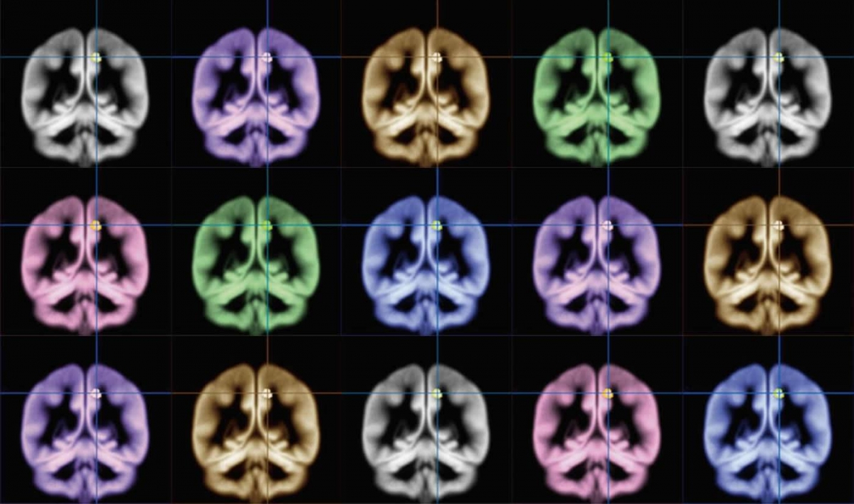 Heterosexual women aroused by both male and female erotica, brain scans show